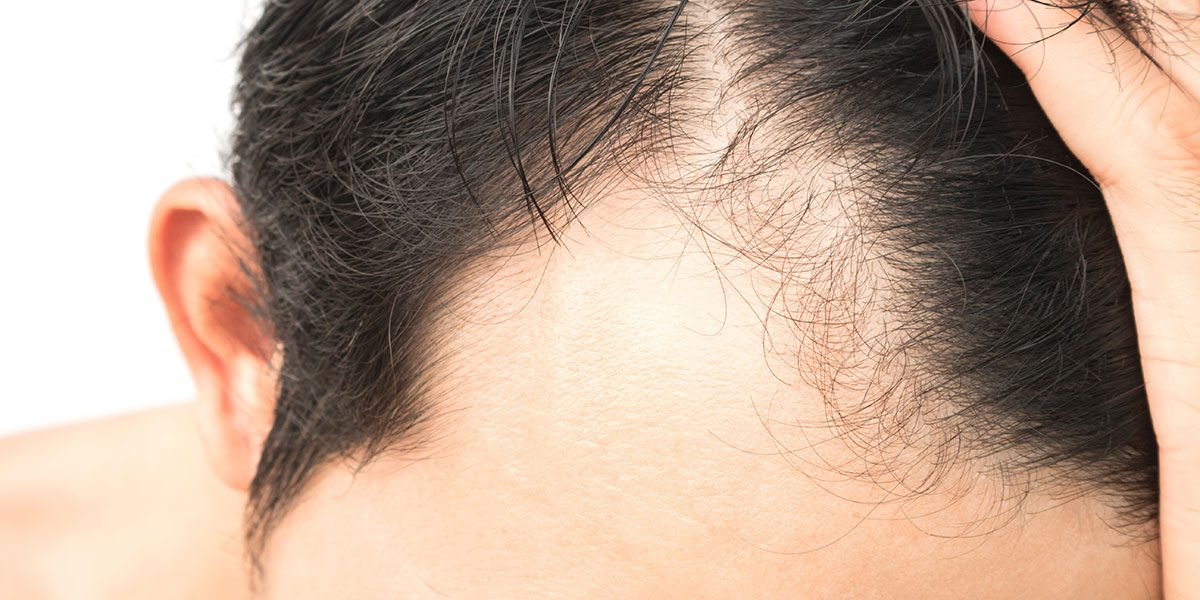 Top Natural Home Remedies For Alopecia Urcripton Guest Blog